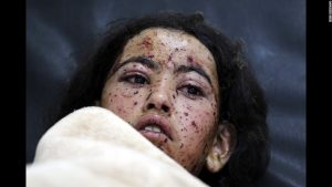 The civil war in Yemen continues to rage for more than a year and a half. This young girl awaits a doctor after being wounded in an airstrike.